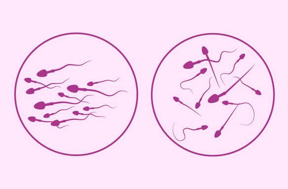 sperma buzilishi