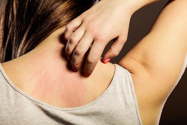 dermatit аллергия